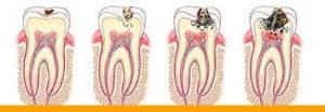 лечение кариеса зубов в Минске